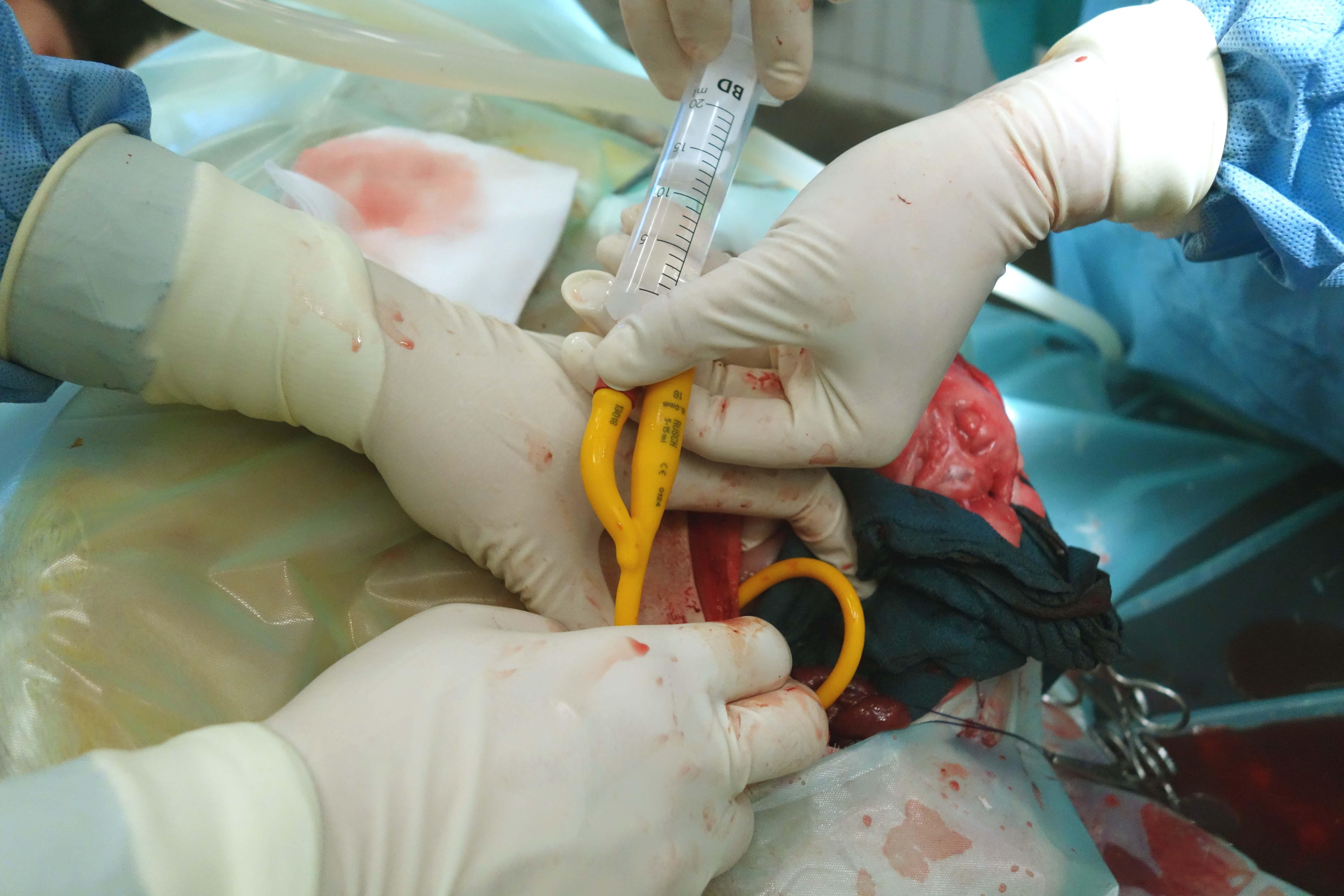 obstruktionen bei bauchfellkrebs