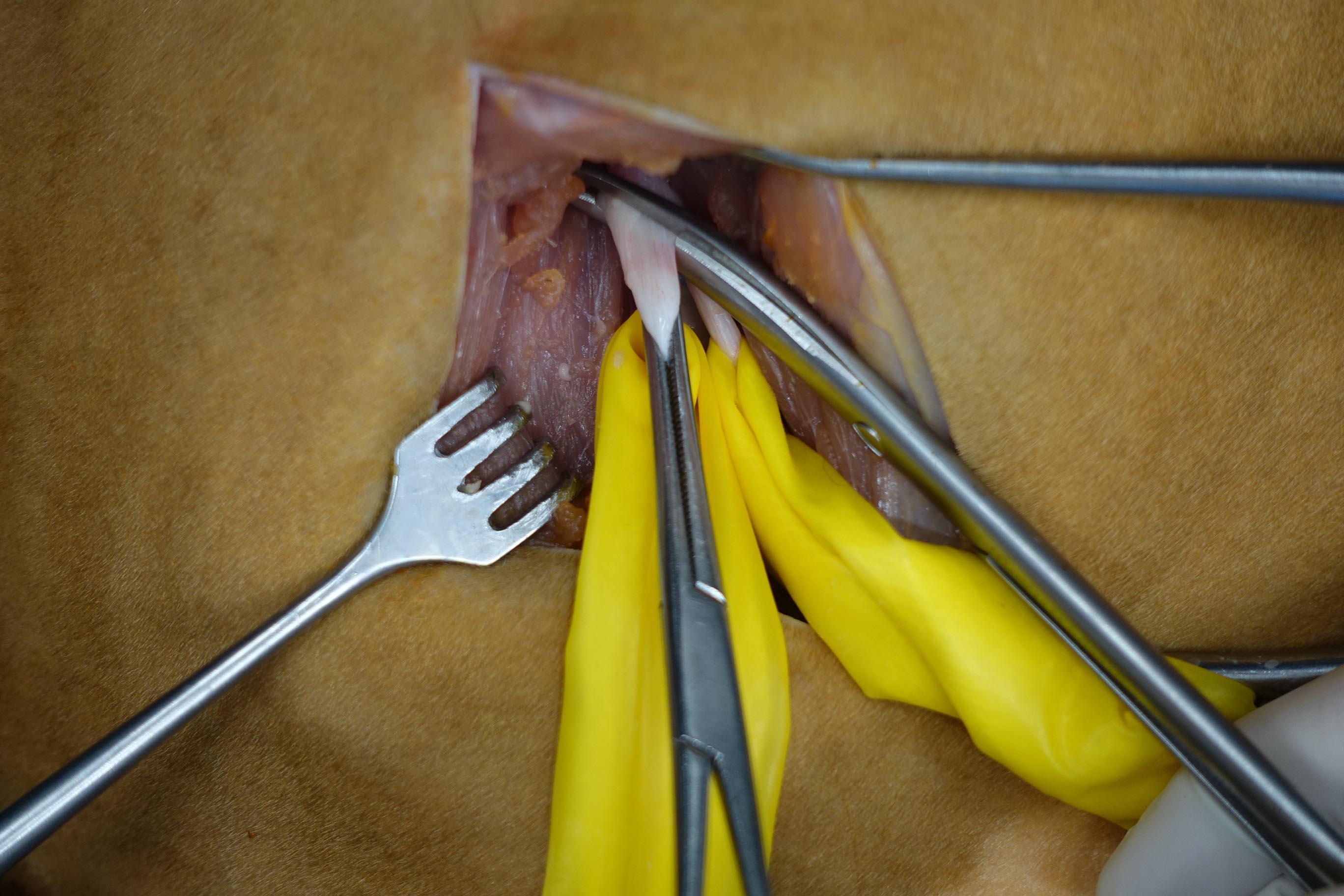 verlauf nervus ischiadicus